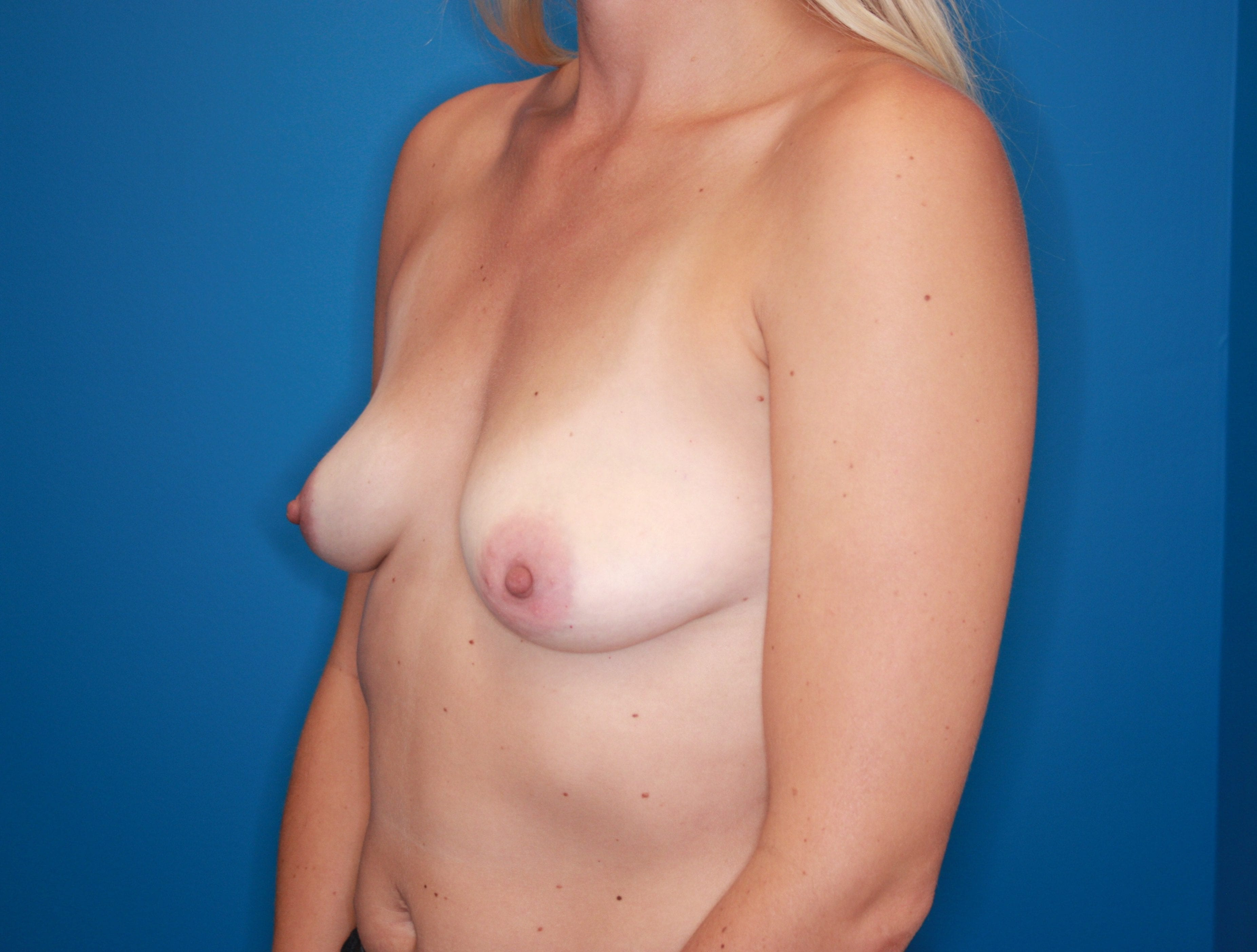 Breast Augmentation Patient Photo - Case 141 - before view-1